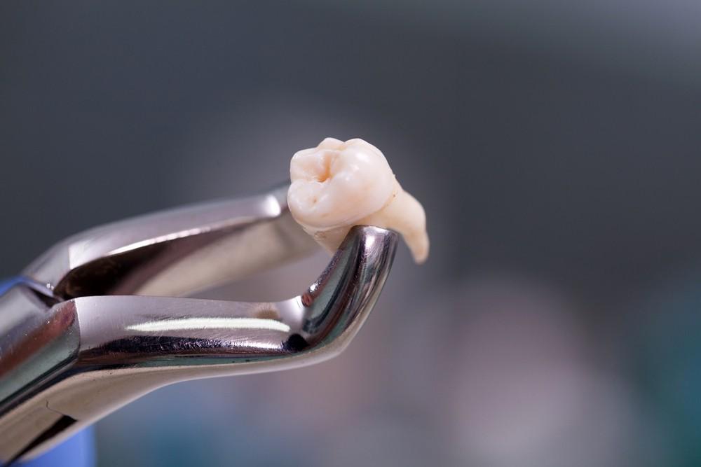 extractie dentara, stomatolog baia mare, dentify baia mare