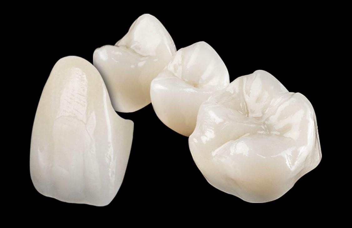 coroane dentare din zirconiu