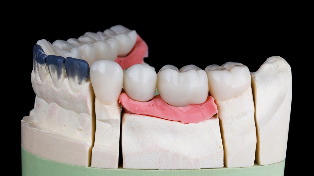punte dentara, punte dentara baia mare, proteza fixa, proteza fixa baia mare