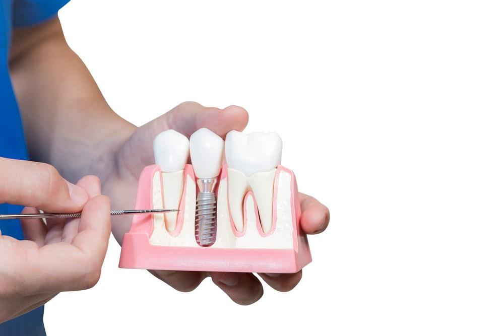 implant dentar baia mare, stomatologie baia mare, dentify baia mare, dentist baia mare