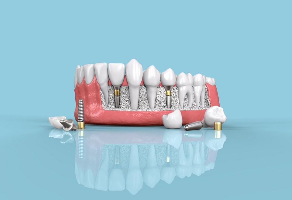 implant denar baia mare, dentify baia mare, stomatologie baia mare
