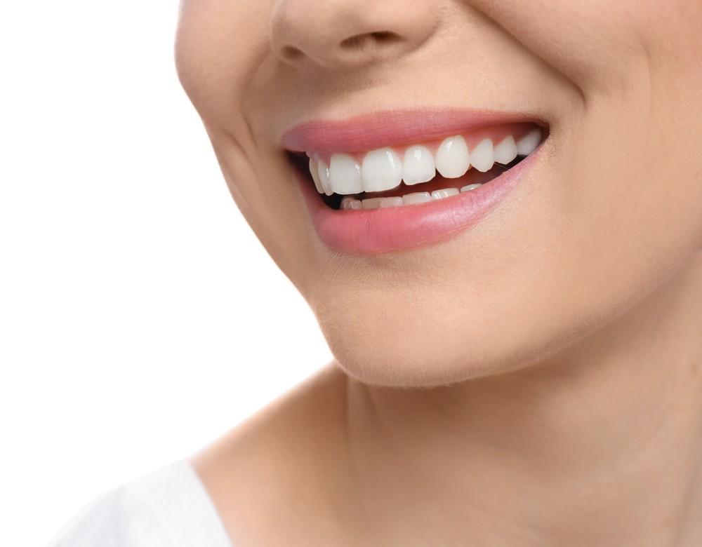 fatete dentare baia mare, fatete denatre emax baia mare, stomatolog baia mare, dentist baia mare