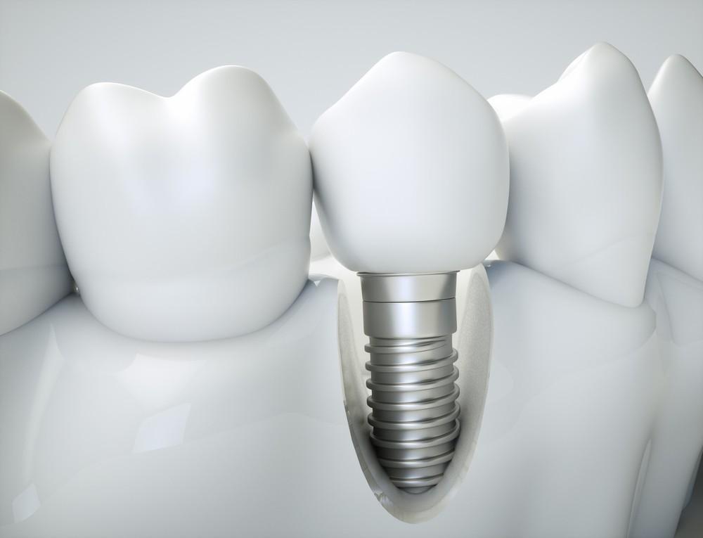 implant dentar baia mare, dentify baia mare, stomatolog baia mare, stomatologie baia mare
