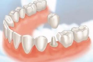 coroane dentare metalo-ceramice sau din zirconiu